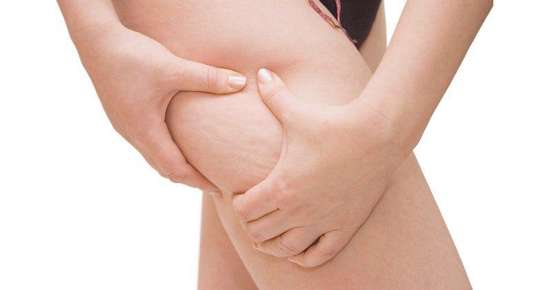 Stop alla cellulite
