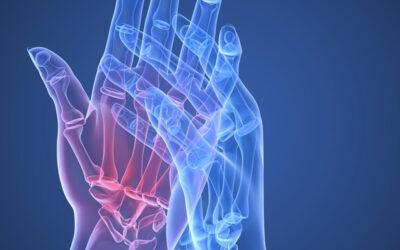 Non solo farmaci per il trattamento dell'artrite reumatoide
